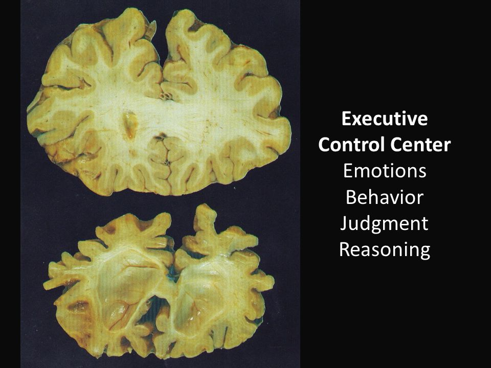 Executive Control Center Emotions Behavior Judgment Reasoning