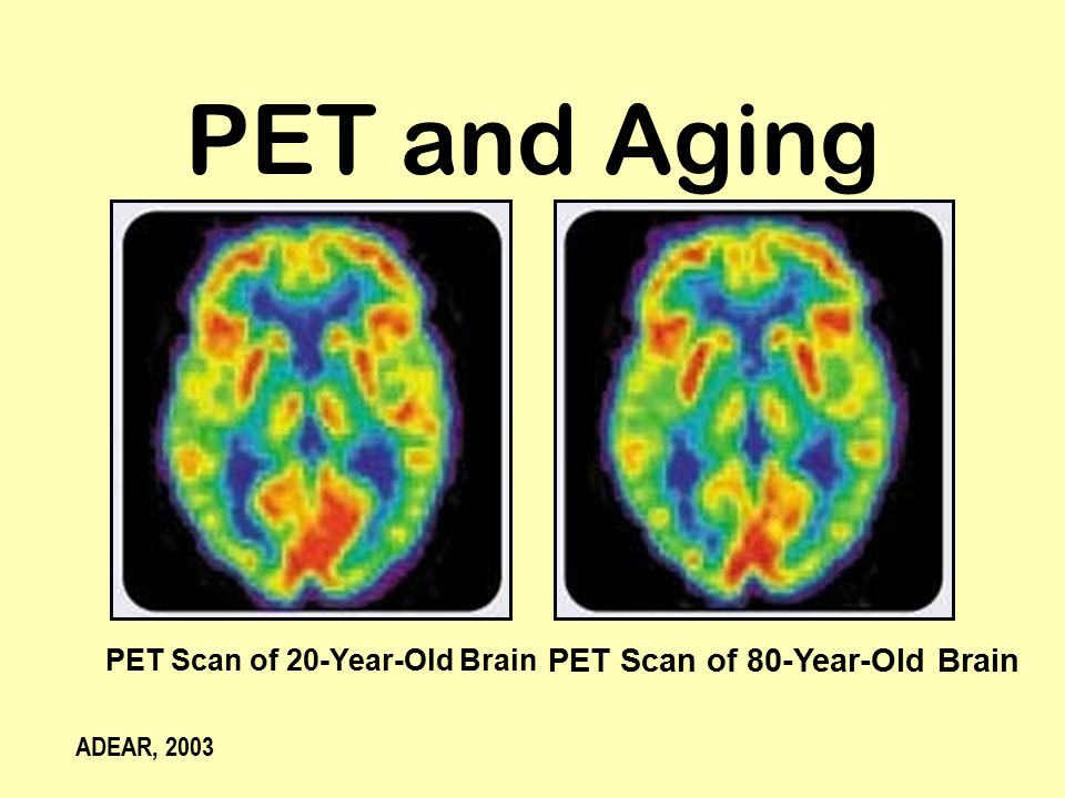 PET Scan of 20-Year-Old Brain PET Scan of 80-Year-Old Brain PET and Aging ADEAR, 2003