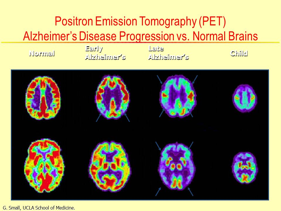 Positron Emission Tomography (PET) Alzheimer's Disease Progression vs.