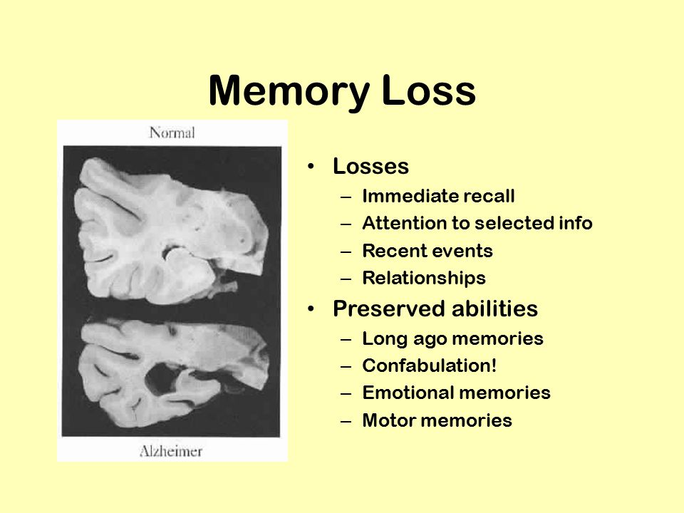 Memory Loss Losses – Immediate recall – Attention to selected info – Recent events – Relationships Preserved abilities – Long ago memories – Confabulation.