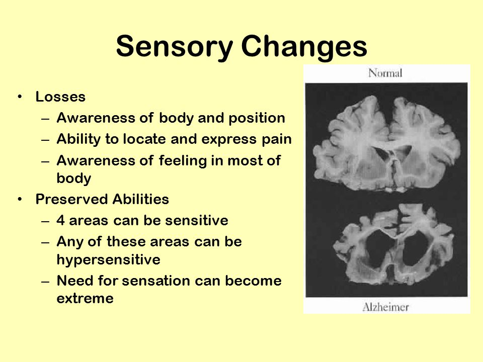 Sensory Changes Losses – Awareness of body and position – Ability to locate and express pain – Awareness of feeling in most of body Preserved Abilities – 4 areas can be sensitive – Any of these areas can be hypersensitive – Need for sensation can become extreme