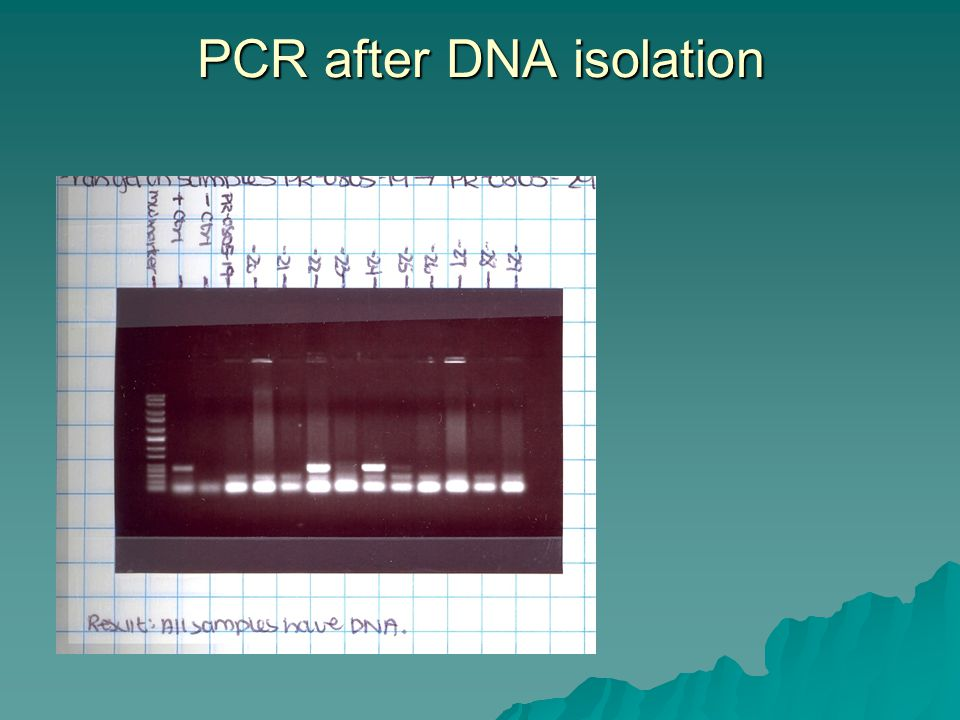 PCR after DNA isolation