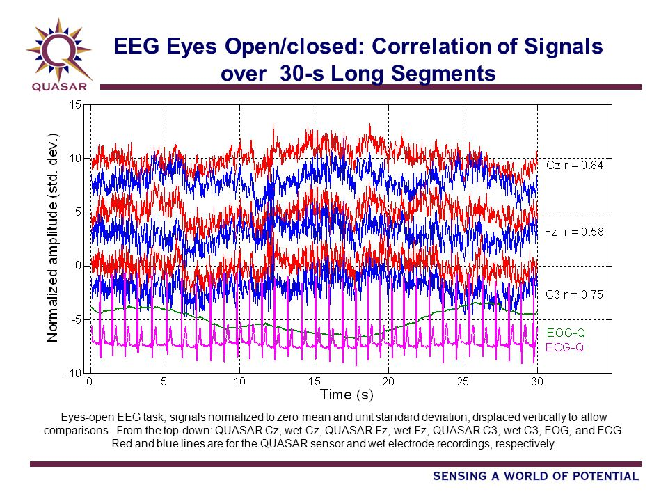 EEG Eyes Open/closed: Correlation of Signals over 30-s Long Segments Eyes-open EEG task, signals normalized to zero mean and unit standard deviation, displaced vertically to allow comparisons.