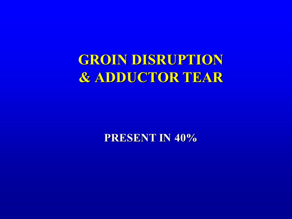 GROIN DISRUPTION & ADDUCTOR TEAR PRESENT IN 40%