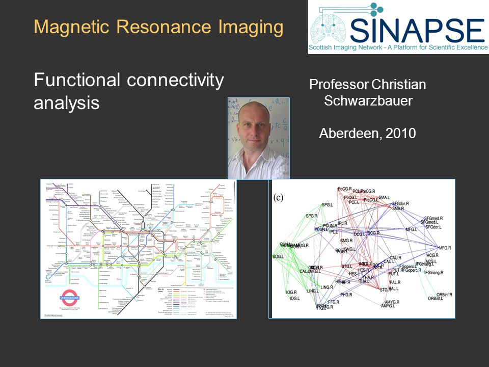 Professor Christian Schwarzbauer Aberdeen, 2010 Magnetic Resonance Imaging Functional connectivity analysis