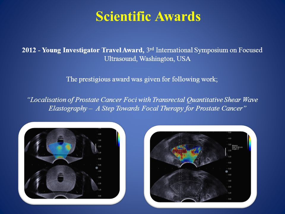 Scientific Awards 2012 - Young Investigator Travel Award, 3 rd International Symposium on Focused Ultrasound, Washington, USA The prestigious award was given for following work; Localisation of Prostate Cancer Foci with Transrectal Quantitative Shear Wave Elastography – A Step Towards Focal Therapy for Prostate Cancer