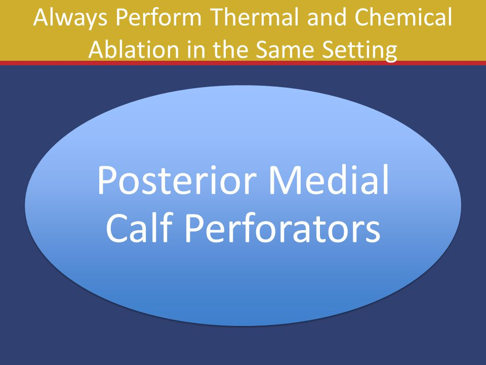 Always Perform Thermal and Chemical Ablation in the Same Setting Posterior Medial Calf Perforators