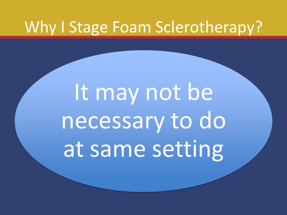 Why I Stage Foam Sclerotherapy? It may not be necessary to do at same setting