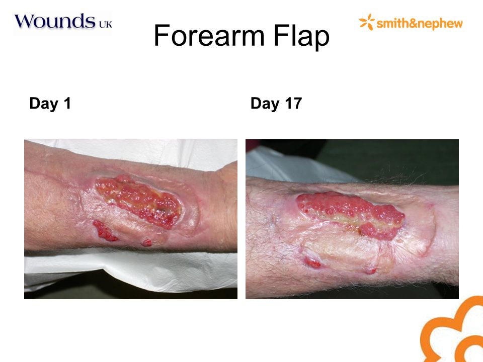 Forearm Flap Day 1Day 17