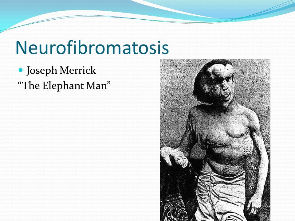 "Joseph Merrick ""The Elephant Man"""