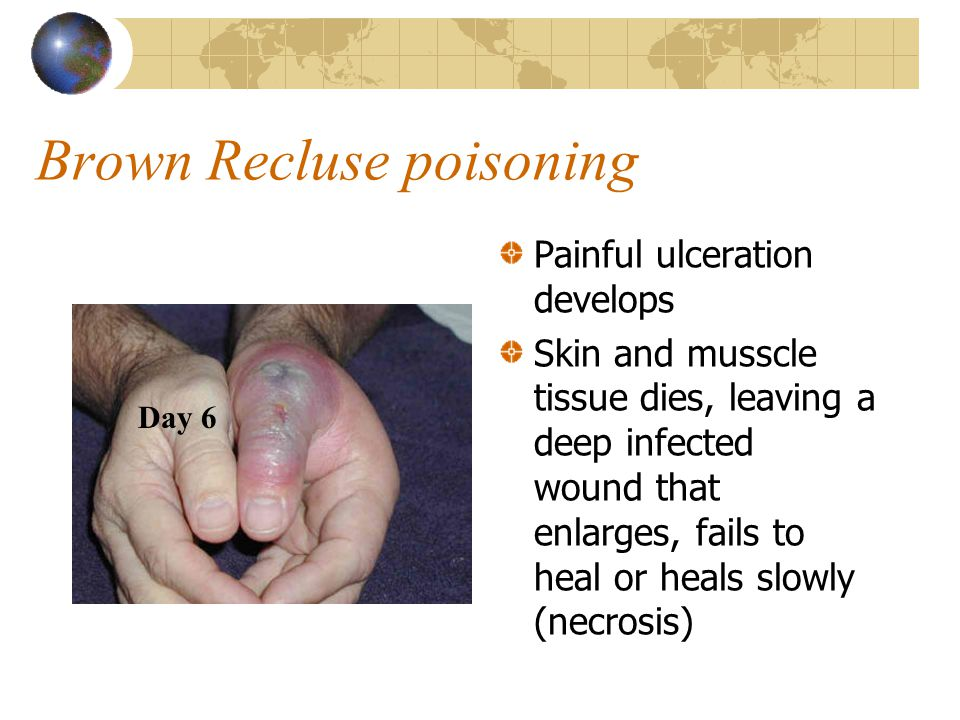 Brown Recluse poisoning Painful ulceration develops Skin and musscle tissue dies, leaving a deep infected wound that enlarges, fails to heal or heals slowly (necrosis) Day 6
