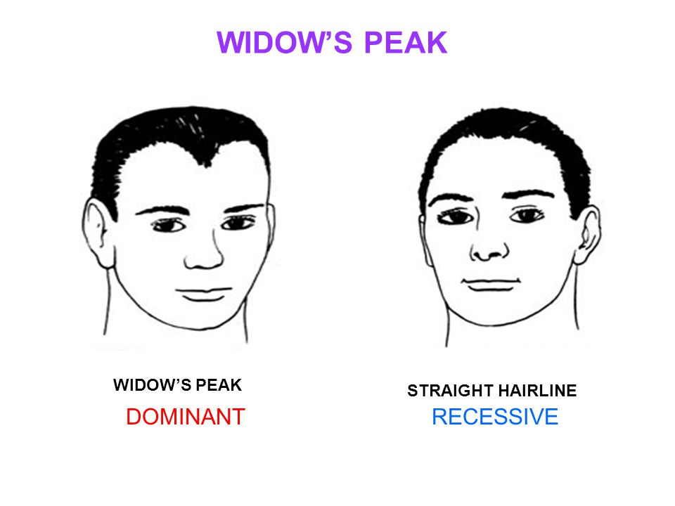WIDOW'S PEAK STRAIGHT HAIRLINE DOMINANTRECESSIVE