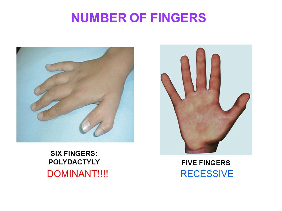 NUMBER OF FINGERS SIX FINGERS: POLYDACTYLY FIVE FINGERS DOMINANT!!!!RECESSIVE