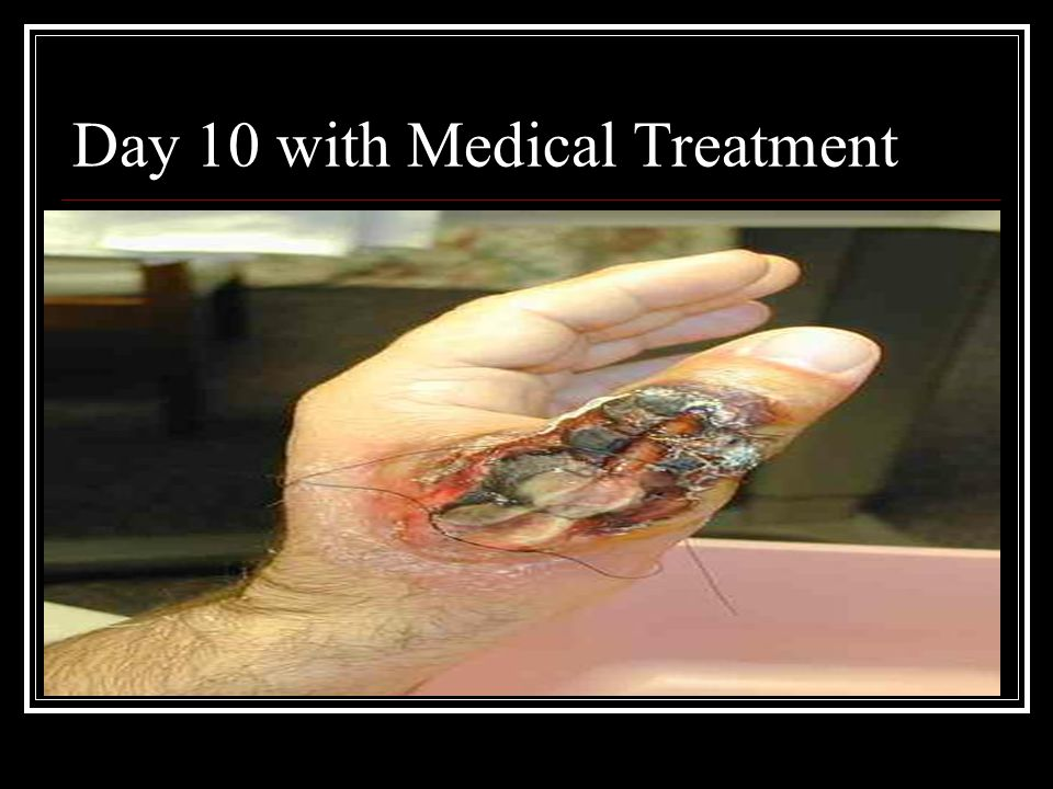 Day 10 with Medical Treatment