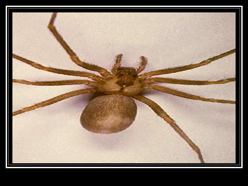 What are the symptoms of a brown recluse spider bite.