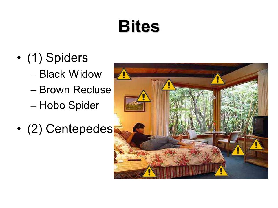 Bites (1) Spiders –Black Widow –Brown Recluse –Hobo Spider (2) Centepedes