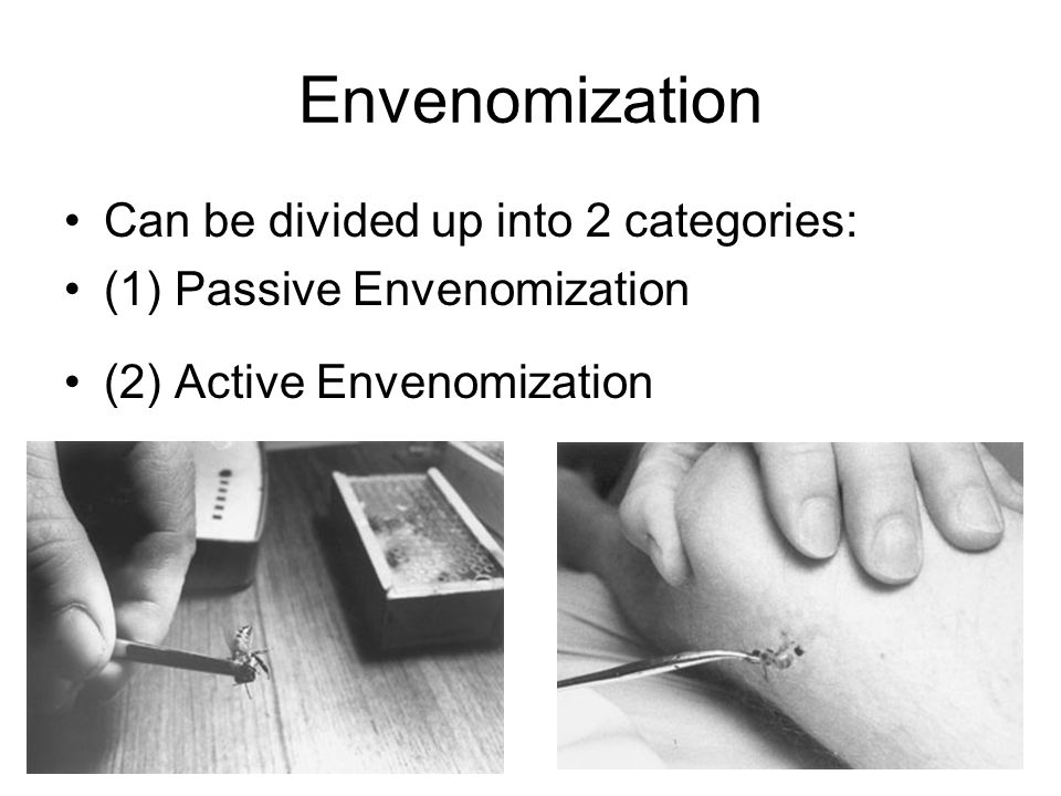 Envenomization Can be divided up into 2 categories: (1) Passive Envenomization (2) Active Envenomization