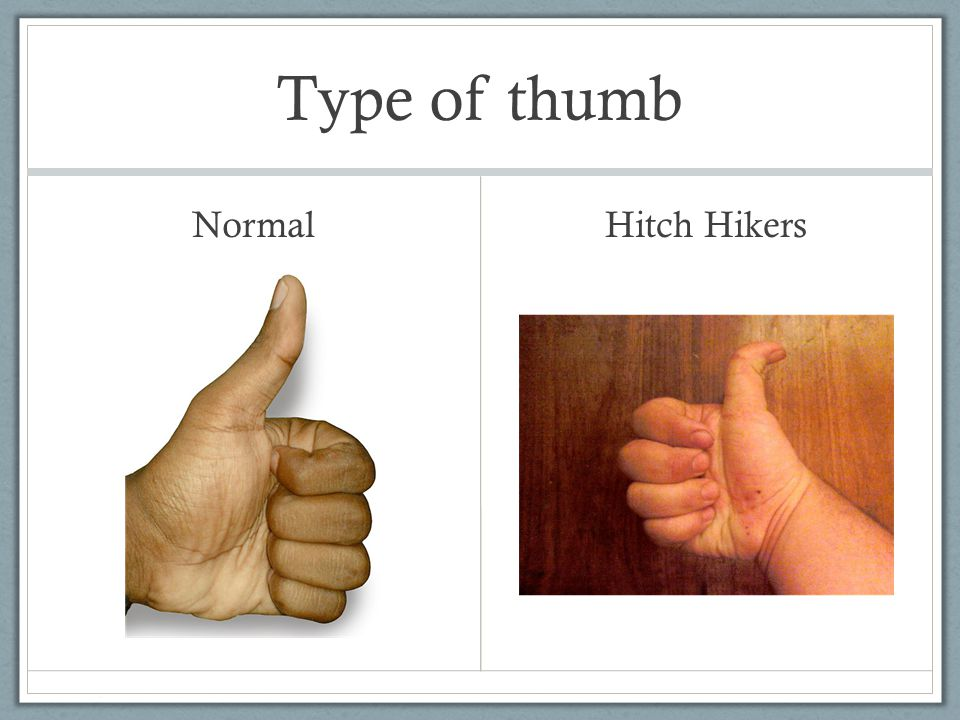 Type of thumb Normal Hitch Hikers