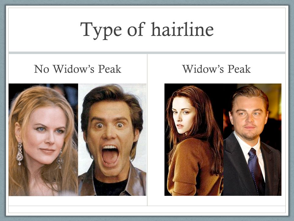 Type of hairline No Widow's Peak Widow's Peak