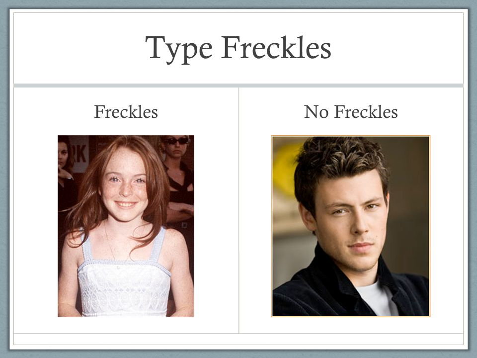 Type Freckles Freckles No Freckles