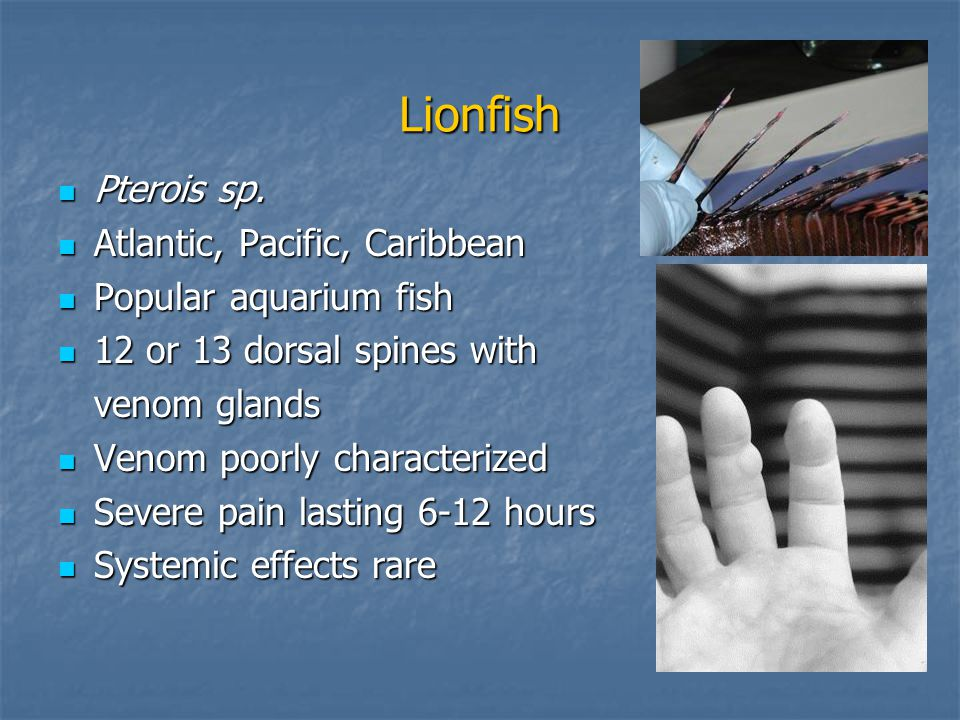 Lionfish Pterois sp. Pterois sp.