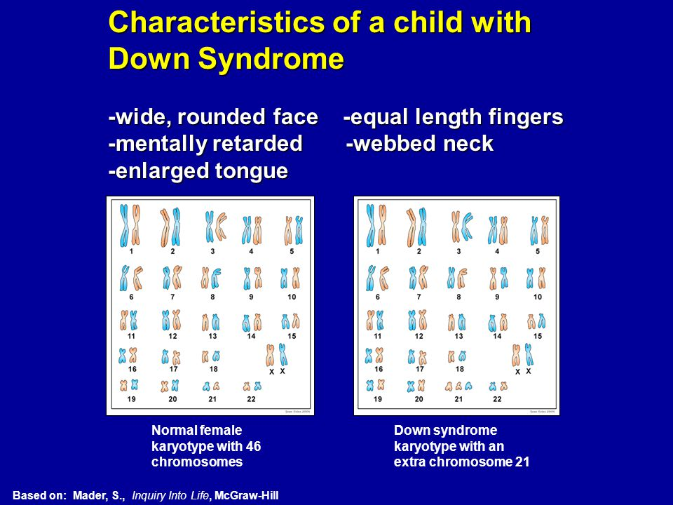 Characteristics of a child with Down Syndrome -wide, rounded face -equal length fingers -mentally retarded -webbed neck -enlarged tongue Normal female