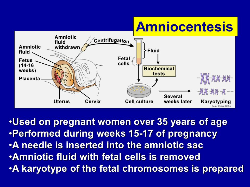 Used on pregnant women over 35 years of ageUsed on pregnant women over 35 years of age Performed during weeks 15-17 of pregnancyPerformed during weeks 15-17 of pregnancy A needle is inserted into the amniotic sacA needle is inserted into the amniotic sac Amniotic fluid with fetal cells is removedAmniotic fluid with fetal cells is removed A karyotype of the fetal chromosomes is preparedA karyotype of the fetal chromosomes is prepared Amniocentesis