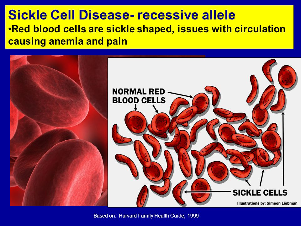 Based on: Harvard Family Health Guide, 1999 Sickle Cell Disease- recessive allele Red blood cells are sickle shaped, issues with circulation causing anemia and pain
