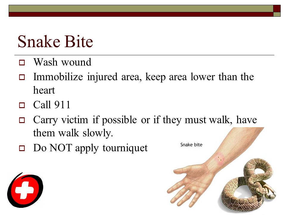 Snake Bite  Wash wound  Immobilize injured area, keep area lower than the heart  Call 911  Carry victim if possible or if they must walk, have the