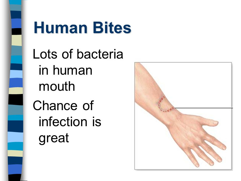 Human Bites Lots of bacteria in human mouth Chance of infection is great