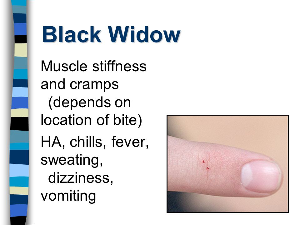 Black Widow Muscle stiffness and cramps (depends on location of bite) HA, chills, fever, sweating, dizziness, vomiting
