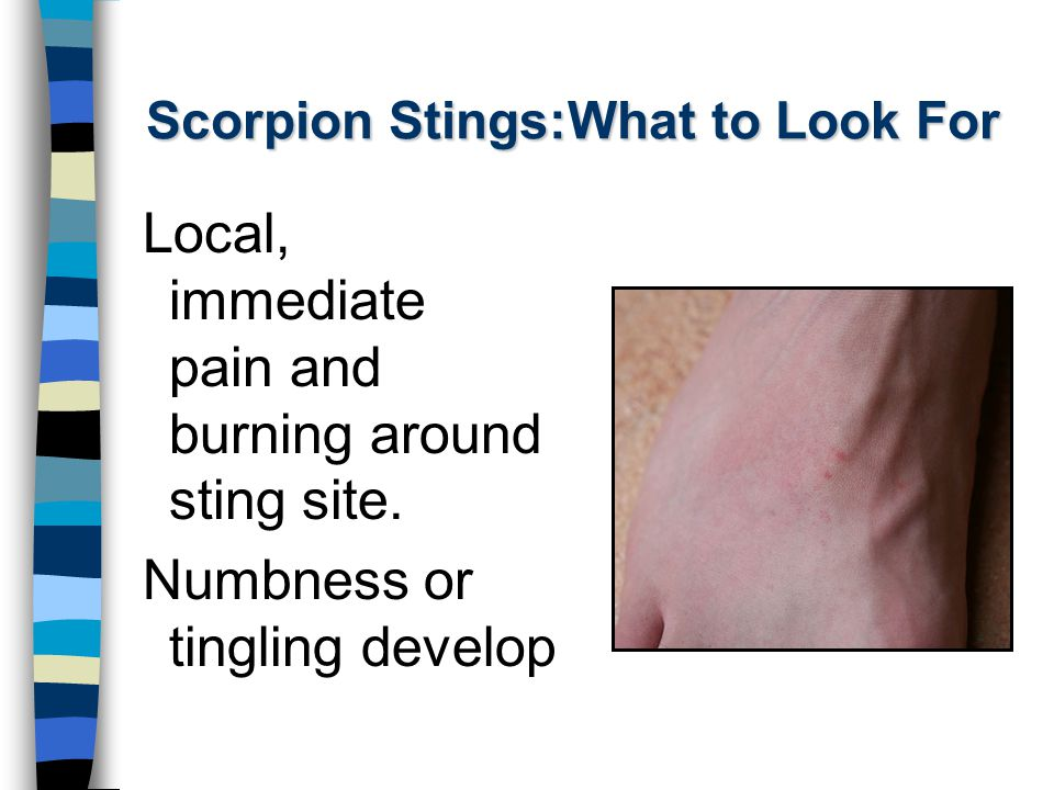 Scorpion Stings:What to Look For Local, immediate pain and burning around sting site. Numbness or tingling develop