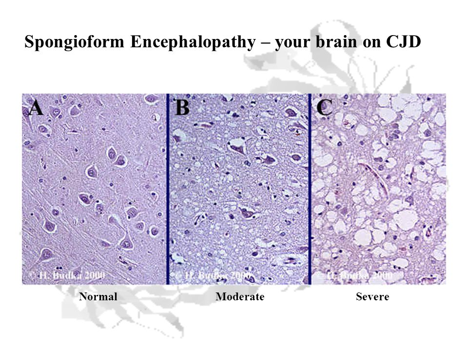 Spongioform Encephalopathy – your brain on CJD NormalModerateSevere