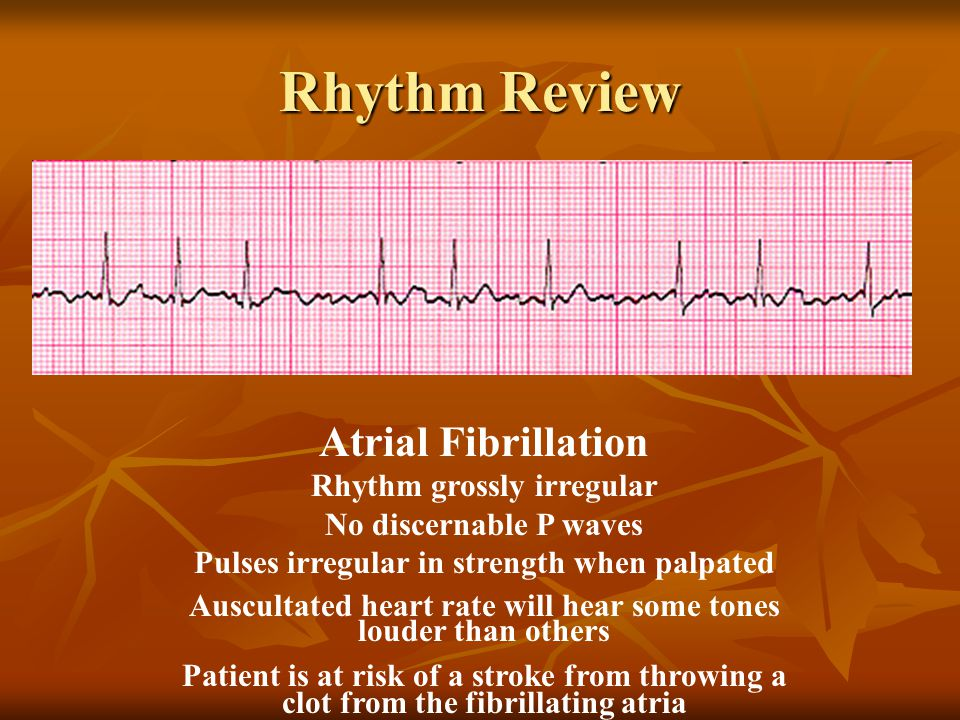 Atrial Fibrillation Rhythm grossly irregular No discernable P waves Pulses irregular in strength when palpated Auscultated heart rate will hear some t
