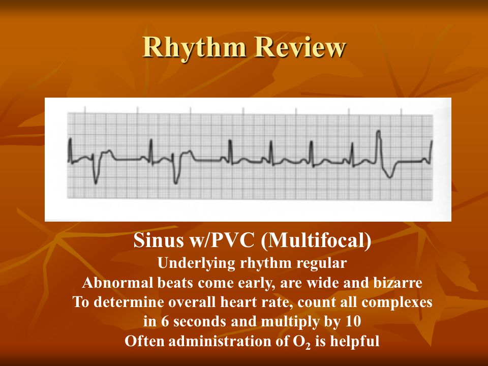 Sinus w/PVC (Multifocal) Underlying rhythm regular Abnormal beats come early, are wide and bizarre To determine overall heart rate, count all complexe