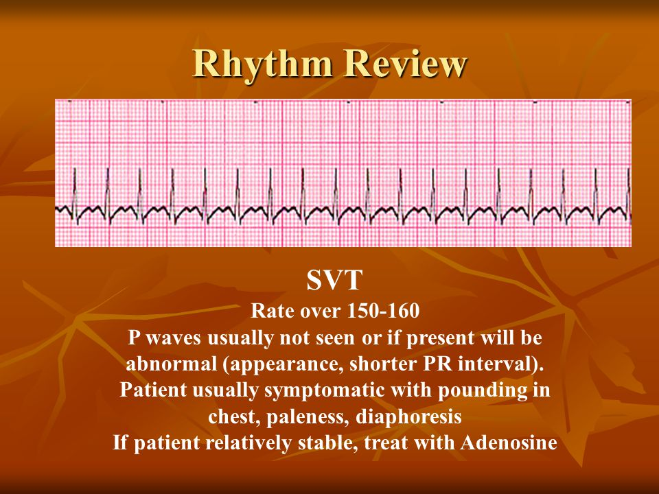 SVT Rate over 150-160 P waves usually not seen or if present will be abnormal (appearance, shorter PR interval). Patient usually symptomatic with poun