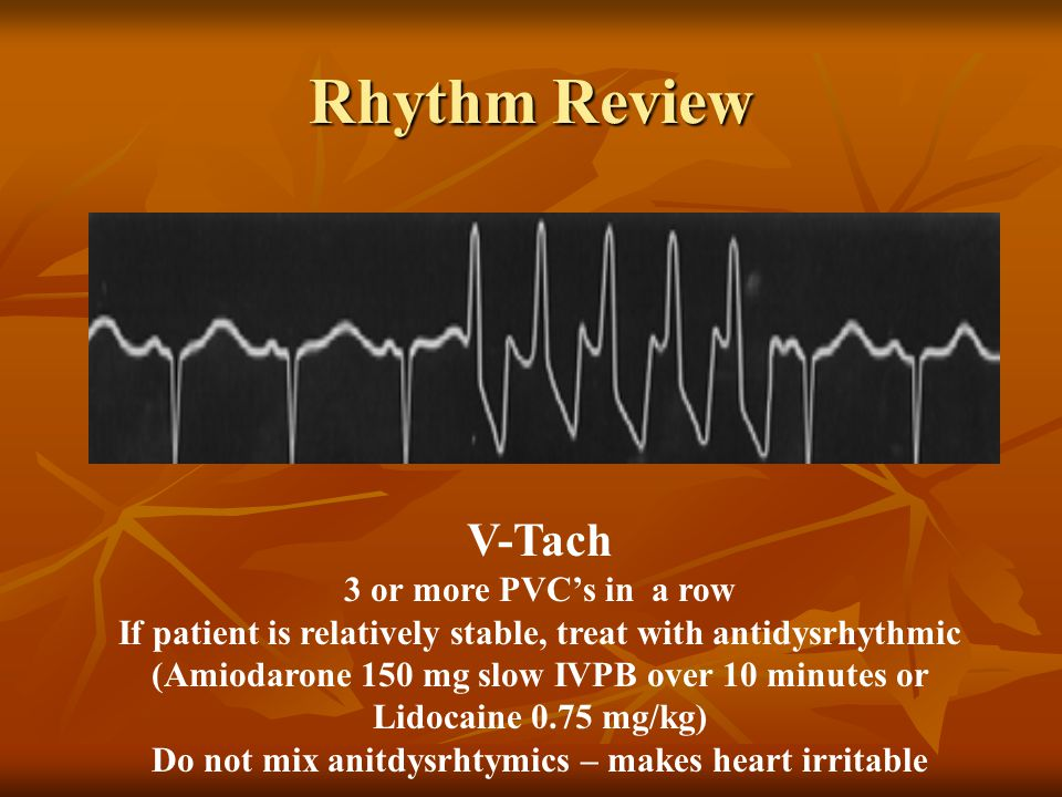 V-Tach 3 or more PVC's in a row If patient is relatively stable, treat with antidysrhythmic (Amiodarone 150 mg slow IVPB over 10 minutes or Lidocaine