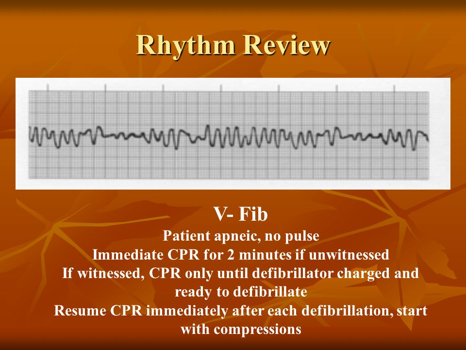 V- Fib Patient apneic, no pulse Immediate CPR for 2 minutes if unwitnessed If witnessed, CPR only until defibrillator charged and ready to defibrillat