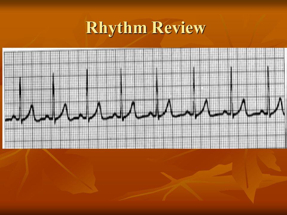 Sinus Rhythm Regular rhythm Rate 60 -100 P waves upright, uniformed PR interval 0.12 – 0.20 seconds QRS complex <0.12 seconds