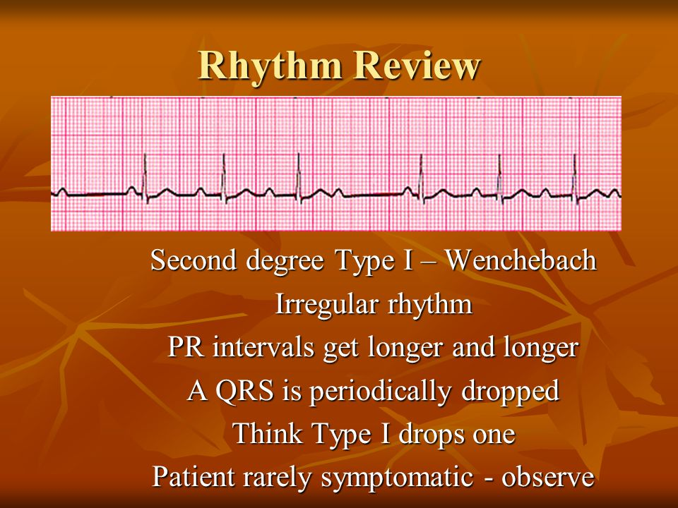 Second degree Type I – Wenchebach Irregular rhythm PR intervals get longer and longer A QRS is periodically dropped Think Type I drops one Patient rar