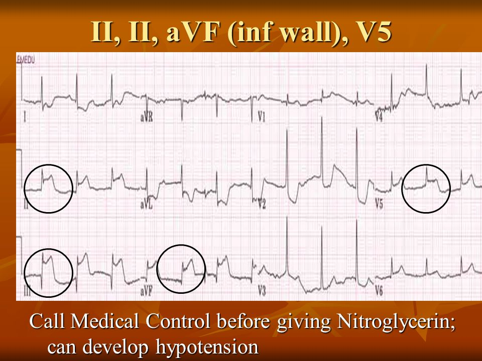 II, II, aVF (inf wall), V5 Call Medical Control before giving Nitroglycerin; can develop hypotension