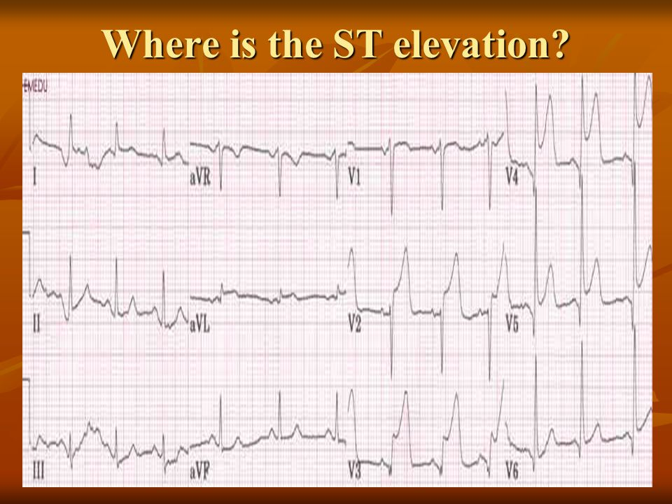 Where is the ST elevation?
