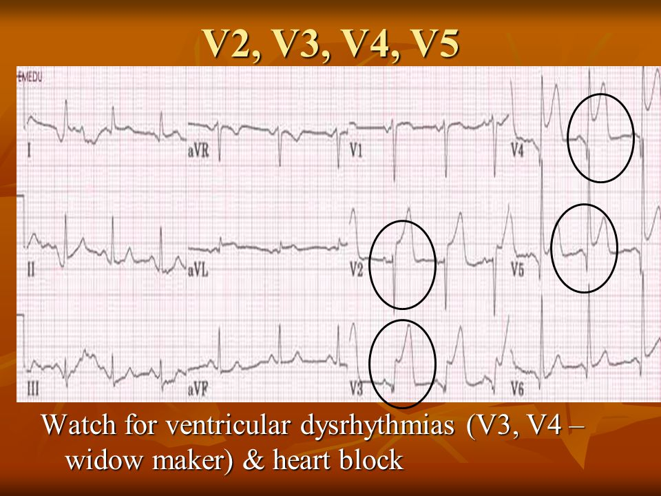 V2, V3, V4, V5 Watch for ventricular dysrhythmias (V3, V4 – widow maker) & heart block