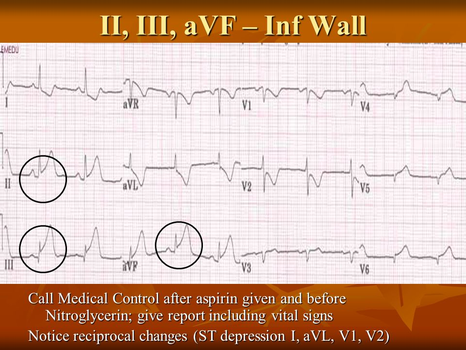 II, III, aVF – Inf Wall Call Medical Control after aspirin given and before Nitroglycerin; give report including vital signs Notice reciprocal changes