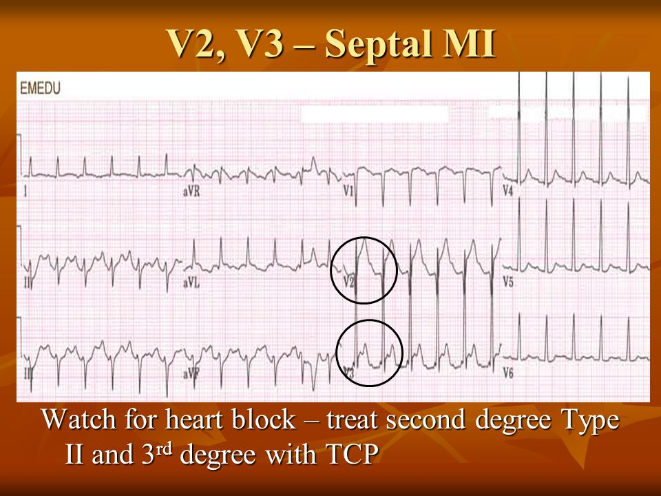 V2, V3 – Septal MI Watch for heart block – treat second degree Type II and 3 rd degree with TCP