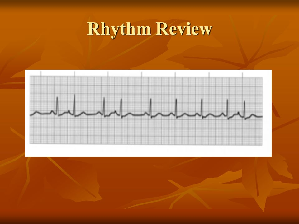 3 rd degree – complete heart block Rhythm regular, almost always slow P to P marches out (not a problem at the SA node) QRS are regular No correspondence between P waves and QRS If symptomatic treat with TCP (lethal rhythm) Check for presence of acute MI