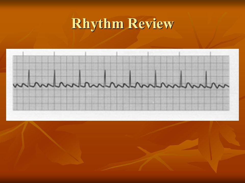V-Tach 3 or more PVC's in a row If patient is relatively stable, treat with antidysrhythmic (Amiodarone 150 mg slow IVPB over 10 minutes or Lidocaine 0.75 mg/kg) Do not mix anitdysrhtymics – makes heart irritable