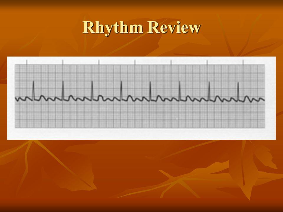 Atrial Flutter Rhythm can be regular or irregular P waves form flutter waves P waves also called a picket fence appearance