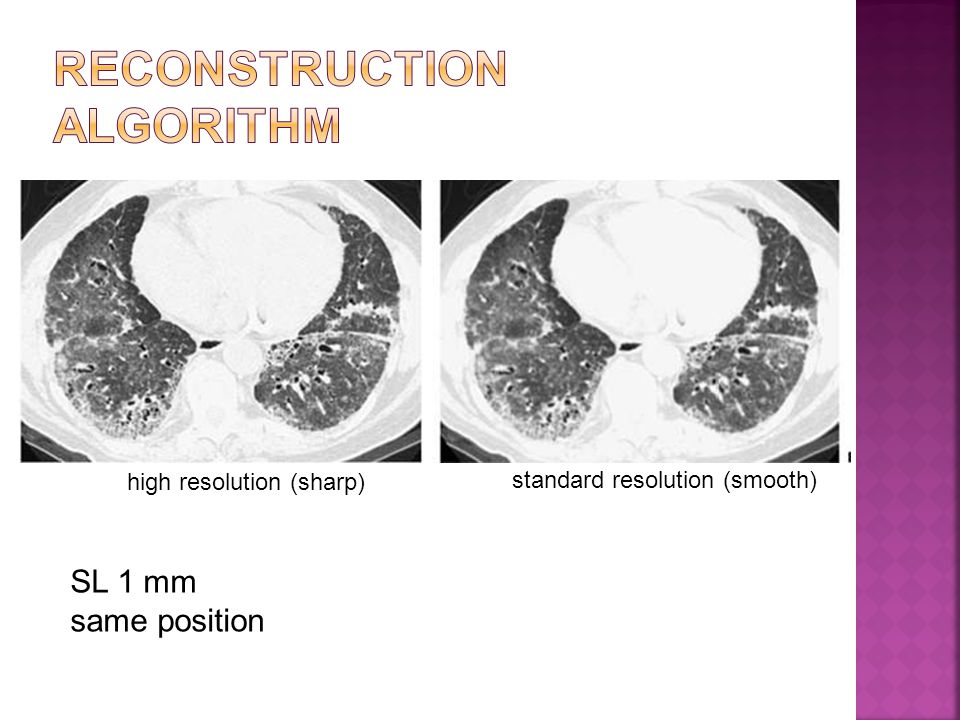 high resolution (sharp) standard resolution (smooth) SL 1 mm same position