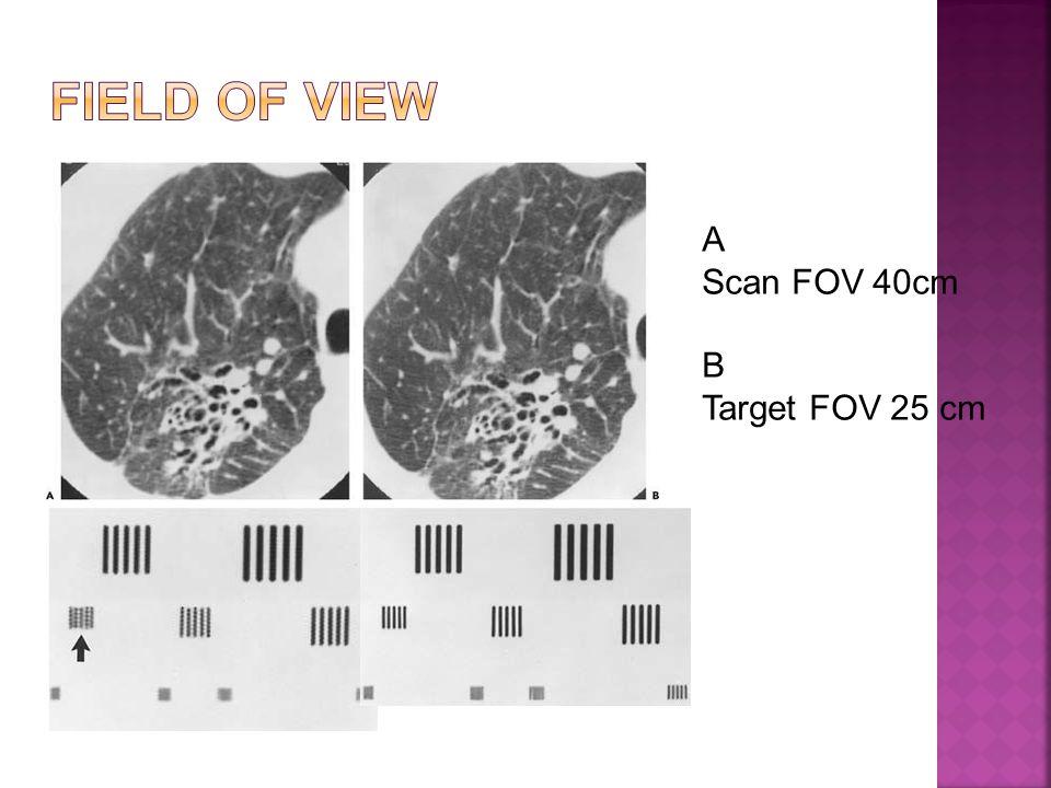 A Scan FOV 40cm B Target FOV 25 cm